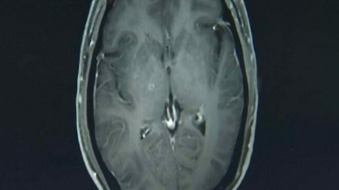Hình chụp cộng hưởng từ não bệnh nhânZhu Zhongfa. Ảnh:Asia Wire