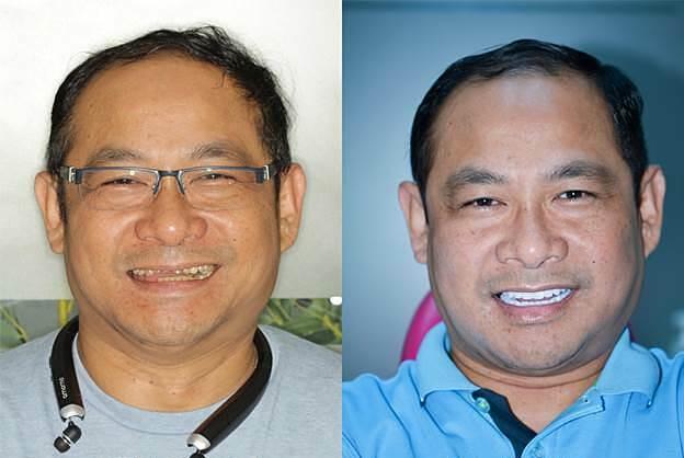 Cơ hội trồng răng miễn phí với chuyên gia Mỹ - 1
