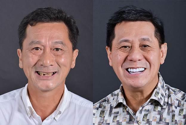 Cơ hội trồng răng miễn phí với chuyên gia Mỹ - 3