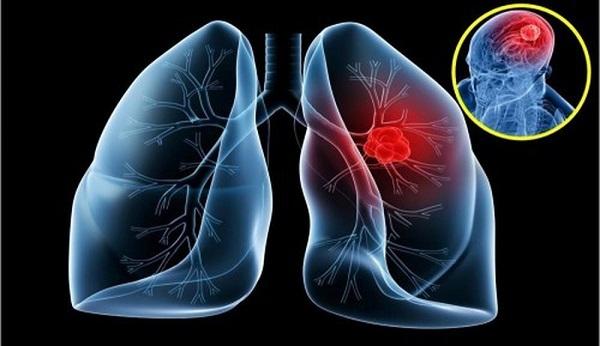 Khi thấy các triệu chứng ung thư di căn, người bệnh cần được thăm khám ngay. (Ảnh minh họa)