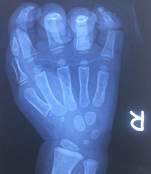 Phim chụp Xquang bàn tay tổn thương của bệnh nhi. Ảnh: Nguyễn Hương.