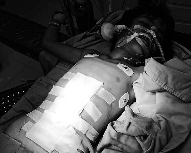 Vết thương vùng bụng được các bác sĩ xử trí an toàn. Ảnh: Khoa Ngoại - Bệnh viện Sản Nhi Quảng Ngãi
