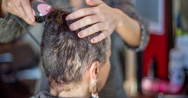 Đa số bệnh nhân ung thư sau hóa trị sẽ bị rụng tóc hoặc tóc yếu và mỏng hơn. (Ảnh minh họa)