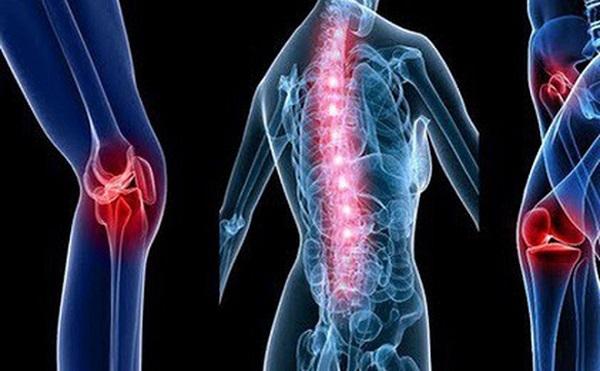 Triệu chứng của ung thư di căn có thể là đau xương, đau đầu, khó thở... (Ảnh minh họa)