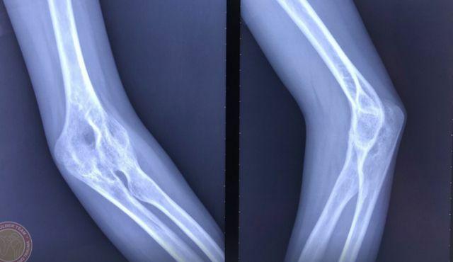Hình ảnh Xquang của bệnh nhân trước mổ, các xương ở vùng khuỷu dínhvới nhau. Ảnh: Bệnh viện cung cấp,