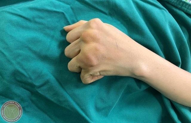 Các ngón tay của bệnh nhân bị biến dạng. Ảnh: Bệnh viện cung cấp.