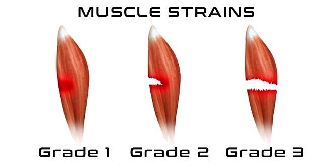 Chấn thương cơ đùi 3 mức độ. Từ trái qua phải: tổn thương nhẹ, tổn thương vừa, tổn thương nặng nhất. Ảnh: Bác sĩ cung cấp