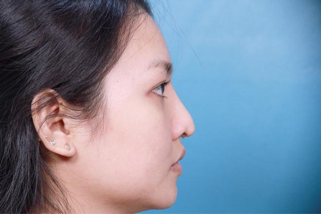 Trường hợp mũi biến chứng đầu mũi sụp, cánh mũi co rút, mụn nhọt dưới chân mũi.
