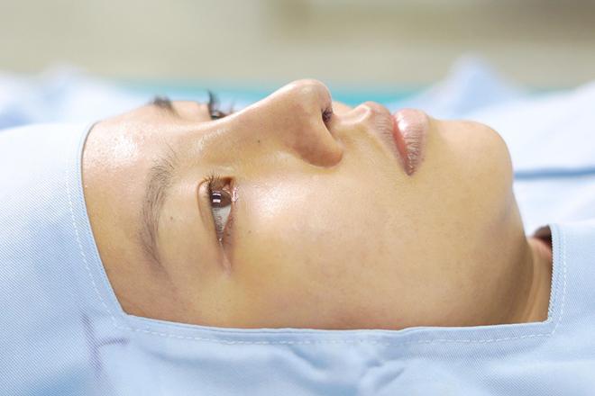 Biến chứng đầu mũi sụp, cánh mũi co rút, mụn nhọt dưới chân mũiđược loại bỏsau nâng mũi cấu trúc Mega S+.