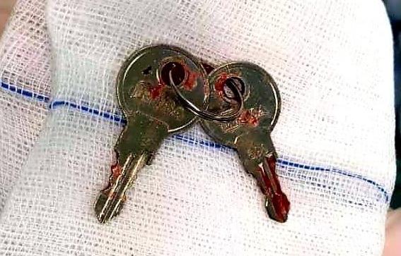 Chùm chìa khoá được đưa ra khỏi dạ dày bệnh nhi. Ảnh do bệnh viện cung cấp.