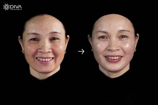 Filler MD Dynamic Codes - kỹ thuật bộ khắc phục chảy xệ khuôn mặt - 3
