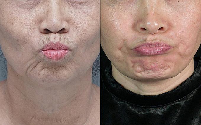 Khi cử động khuôn mặt, nếp nhăn, rãnh sâu hình thành tác động khiến gương mặt bị chảy xệ.