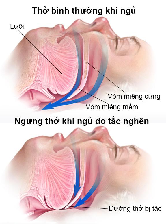 Hình ảnh đường hô hấp trên bình thường,và đường hô hấp trên bị tắc nghẽn, luồng không khí (màu xanh) không thể đi qua lưỡi gà và eo họng. Đường hô hấp trên bị tắc nghẽn, luồng không khí (màu xanh) không thể đi qua lưỡi gà và eo họng.