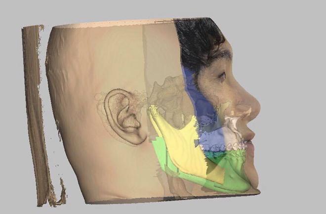 Ảnh 3D sau phẫu thuật chỉnh hàm bệnh nhân. Ảnh do bác sĩ cung cấp.