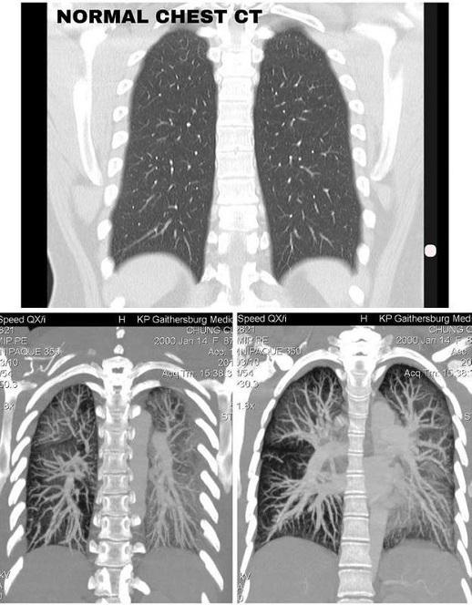 Phổi của người bình thường (trên) và phổi của Claire Chung (dưới). Ảnh: Claire Chung