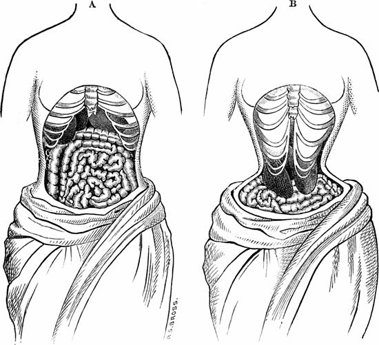 Mặc áo nịt bụng có thể khiến nội tạng bị lệch khỏi vị trí ban đầu. Ảnh: Forbes