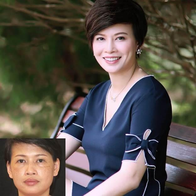 Doanh nhân Đặng Thanh Hà – Phó Tổng giám đốc Thanh Hằng Beauty Medi trước và sau điều trị nám da.