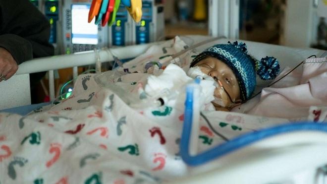 Sawyer Kelley mắc chứngAlagille, phải phẫu thuật ghép gan khi mới 1 tuổi. Ảnh:Courtesy UPMC