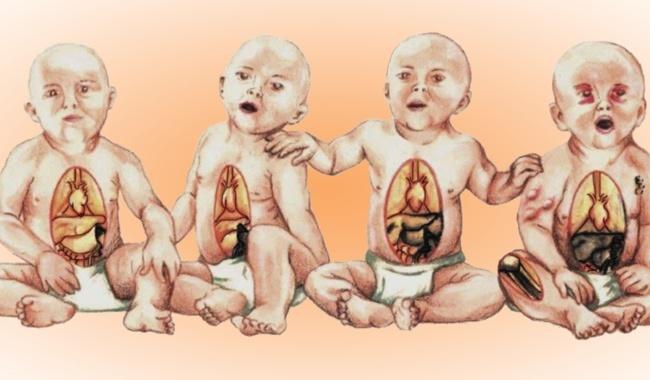 U nguyên bào thần kinh thường gặp ở trẻ sơ sinh và dưới 5 tuổi. Ảnh: Giáo trình Trường Cao đẳng Y khoa Phạm Ngọc Thạch.