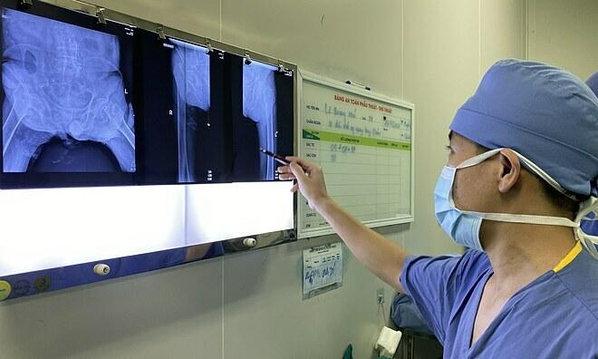 Các bác sĩ hội chẩn thay cả hai khớp háng cùng lúc cho bệnh nhân. Ảnh: Thảo My.