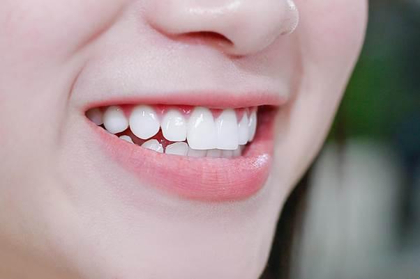 Răng sứ chất lượng có độ bền cao, trông đẹp và tự nhiên như răng thật.