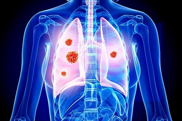 Nguyên nhân chính dẫn đến ung thư phổi là hút thuốc.