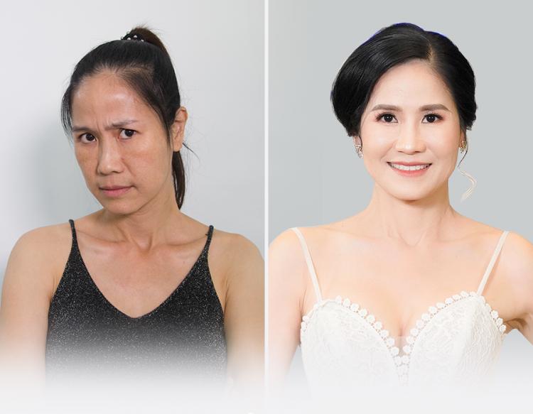 Khi đến Sky Diamond, Đào Vân Anh trải nghiệm các dịch vụ trẻ hóa và hài lòng chất lượng. Trong đó, phương pháp treo mày trẻ hóa mắt giúp chị đẩy lùi tình trạng lão hóa vùng mắt và  cải thiện tầm nhìn từng bị che khuất do da chùng nhiều. Đa số bạn bè, đồng nghiệp đều khen chị trẻ hơn nhiều tuổi.