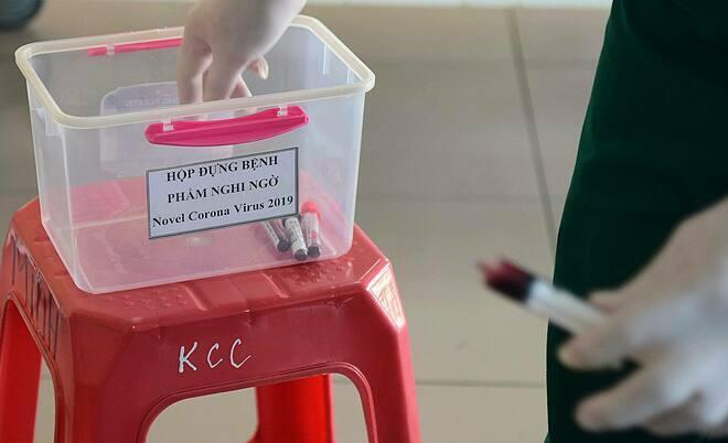 Hộp đựng bệnh phẩm của bệnh nhân nghi ngờ nhiễm nCoV tại Bệnh viện Nhiệt đới Trung ương. Ảnh: Giang Huy.