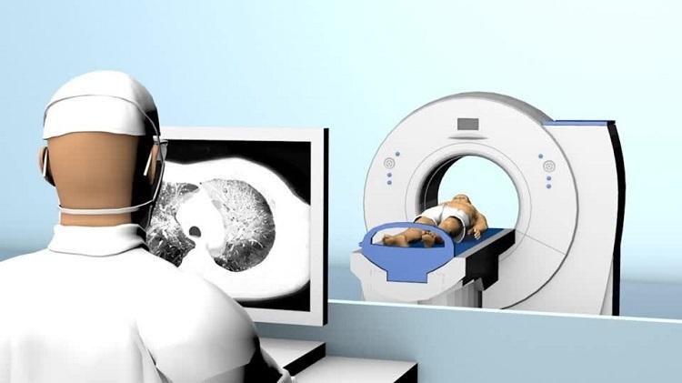 WHO: Phương pháp mới xác định nhanh người viêm phổi