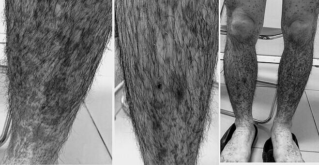 Tình trạng dị ứng mẩn đỏ khắp cơ thể của bệnh nhân. Ảnh: Bệnh viện cung cấp