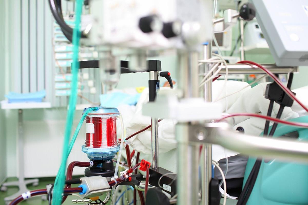 Hệ thống tuầnhoàn và trao đổi oxyngoài cơ thể (ECMO). Ảnh: Medical Daily.