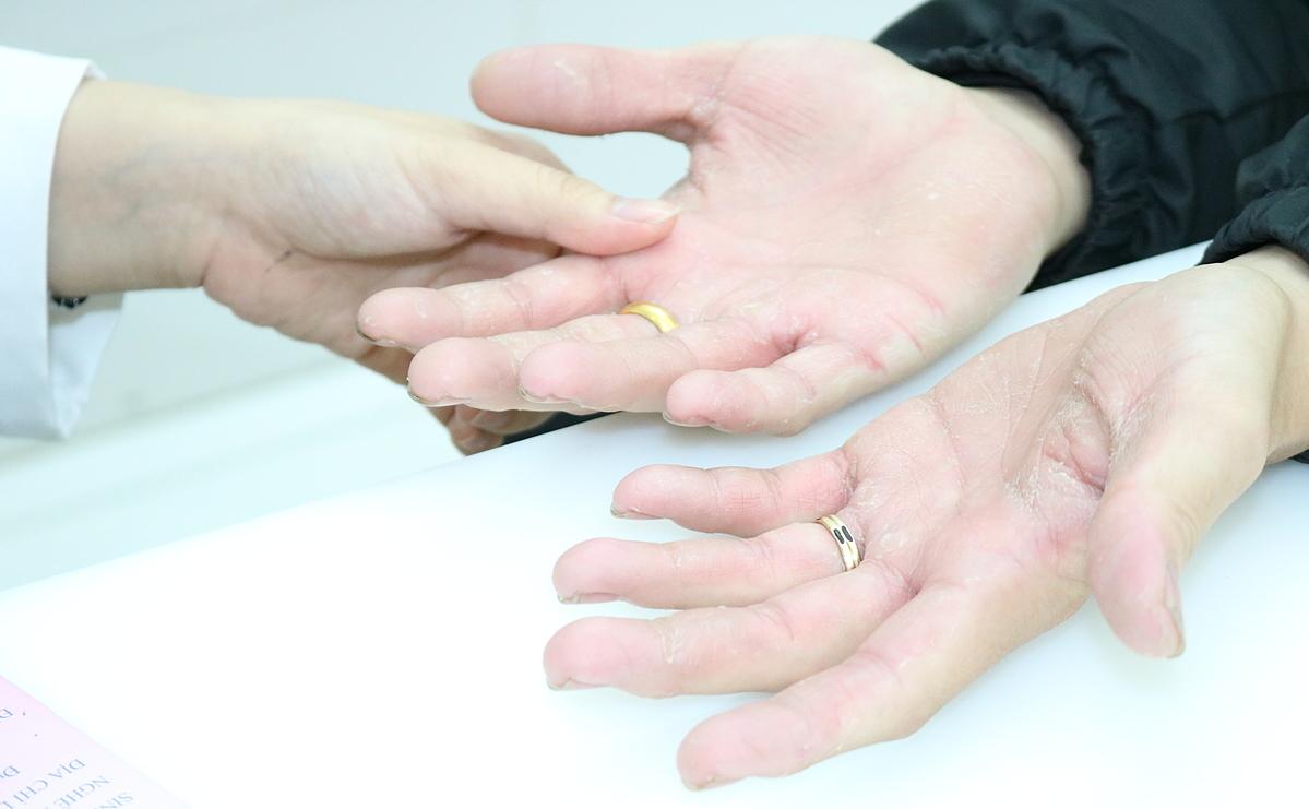 Bệnh nhân khám tại Bệnh viện Da liễu TP HCM với da bàn tay khô ngứa. Ảnh: L.A