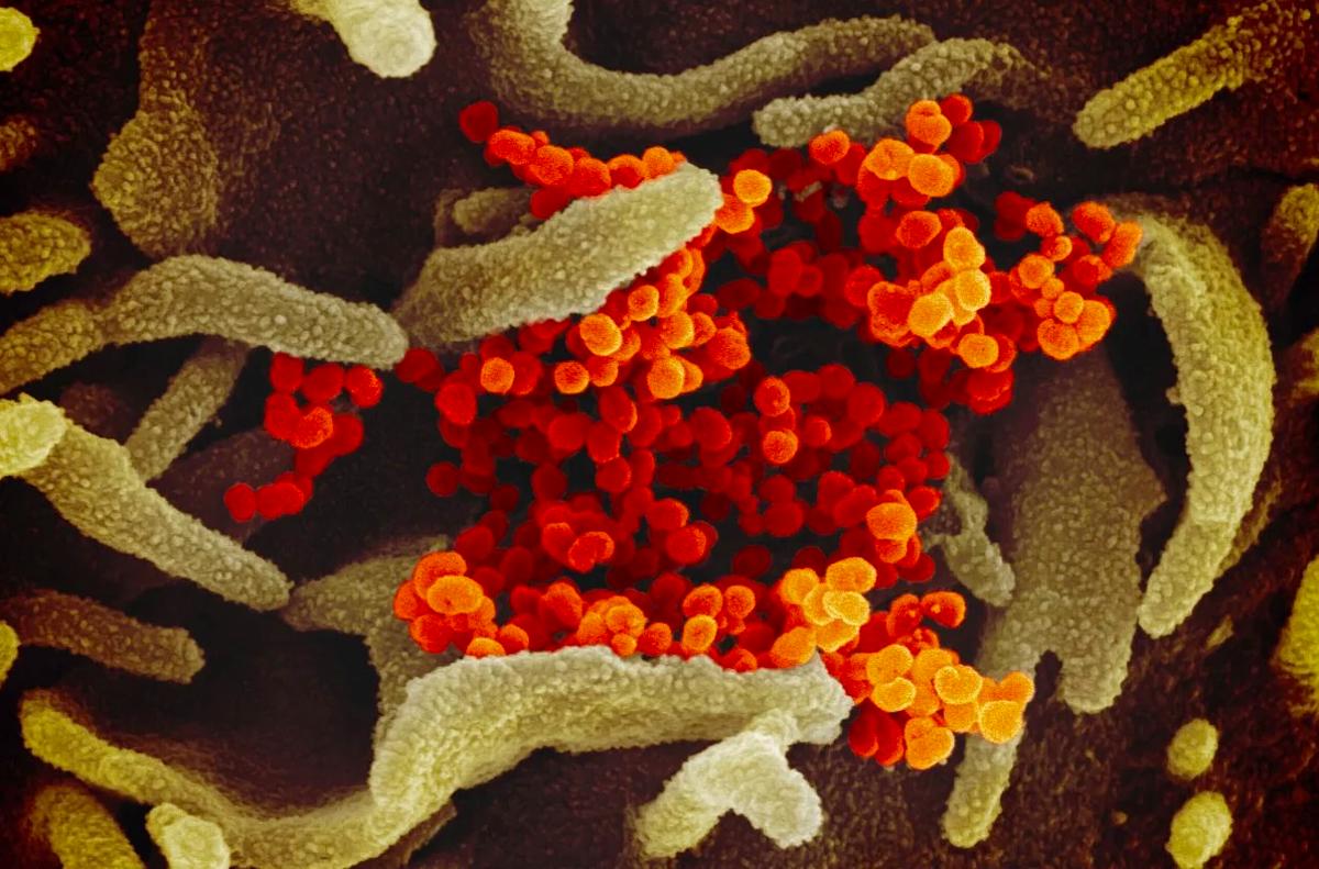 nCoV trong mẫu bệnh phẩm của người mắc Covid-19 dưới kính hiển vi. Ảnh: AP
