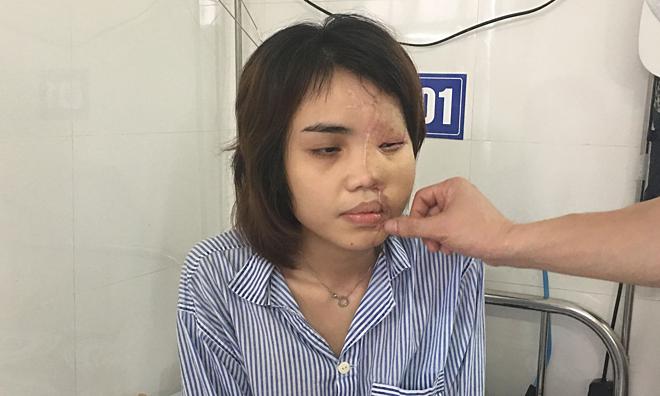 Gương mặt của Lan Vy hồi phục dần sau nhiều ca ghép.