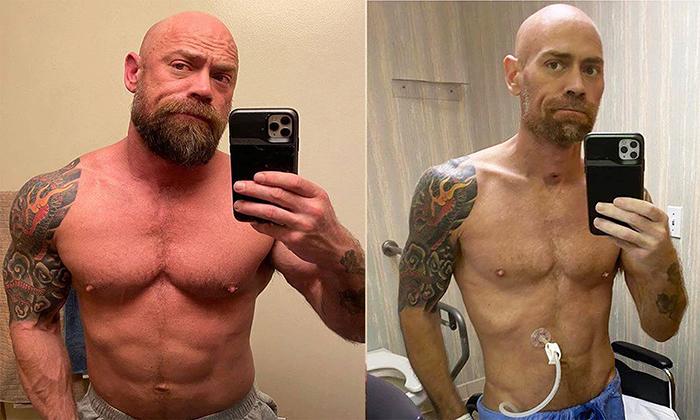 Sự khác biệt của Schultz sau 6 tuần điều trị, giảm từ 86 về 63 kg. Ảnh: Buzzfeed News