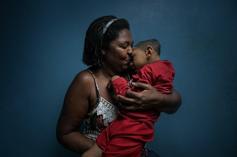 Một bà mẹ bế đứa con bị chứng đầu nhỏ do virus Zika, Brazil năm 2016. Ảnh:Wellcome Photography Prize.