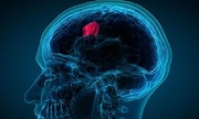 Những biến chứng sau mổ u não