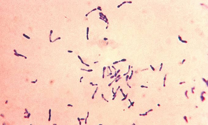 Vi khuẩnCorynebacterium diphtheriae gây ra bệnh bạch hầu. Ảnh:CDC.