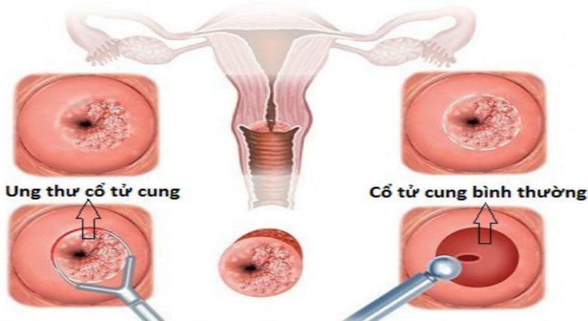 Ung thư cổ tử cung có thể điều trị khỏi, bảo tồn cơ quan sinh sản nếu được phát hiện ở giai đoạn sớm. Ảnh: Y học cộng đồng
