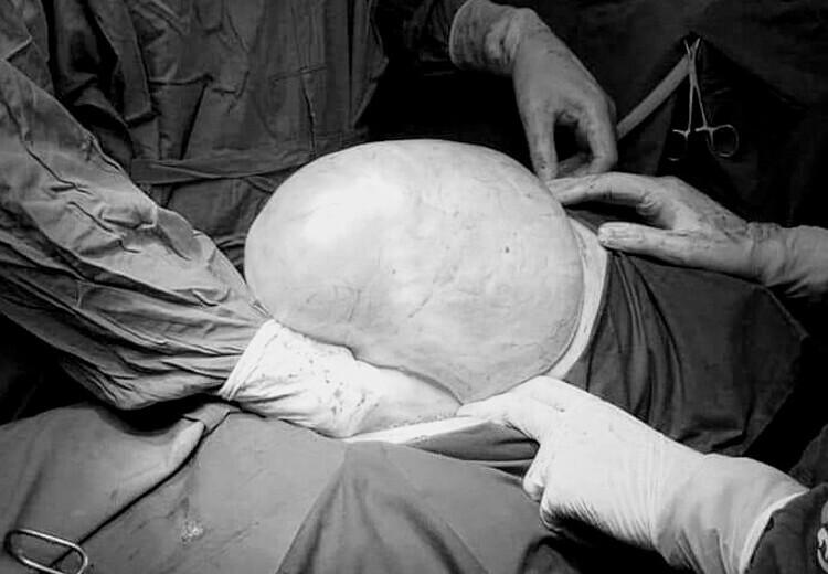 Khối u buồng trứng khổng lồ trong ổ bụng bệnh nhân. Ảnh: Bệnh viện cung cấp