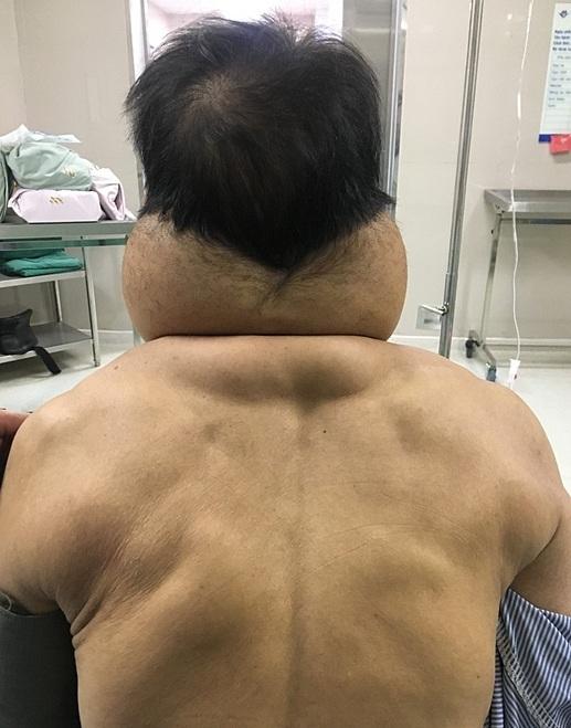 Khối u vùng chẩm gáy hai bên khiến bệnh nhân khó khăn trong sinh hoạt. Ảnh: Bệnh viện cung cấp