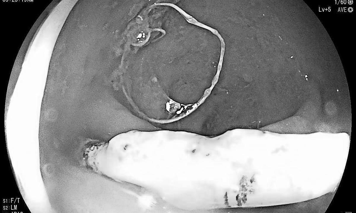 Chiếc vòng tránh thai đâm thủng trực tràng bệnh nhân. Ảnh: Long Nhật.