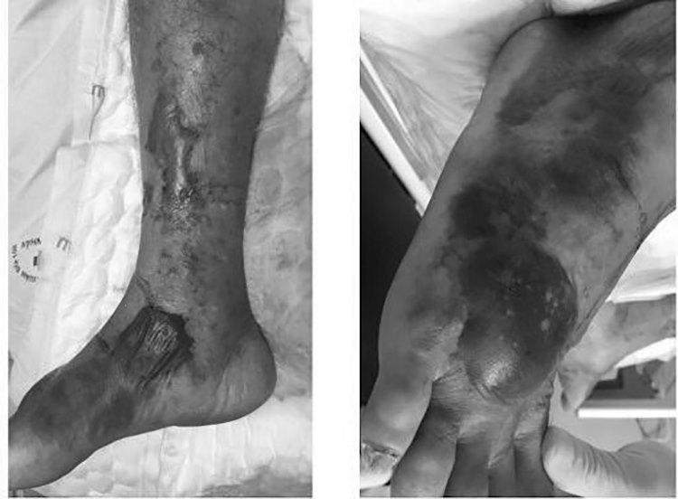 Nổi bọng nước ở chân tay do vi khuẩn Vibrio vulnificus. Ảnh: Bệnh viện cung cấp.