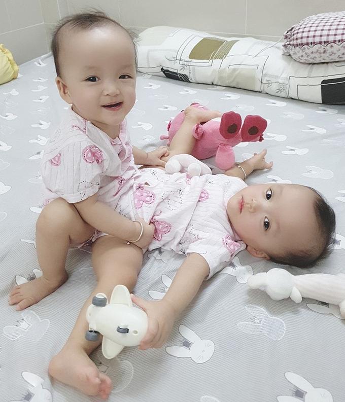 Hai bé Trúc Nhi, Diệu Nhi sẽ được mổ tách vào ngày 15/7. Ảnh do bệnh viện cung cấp.