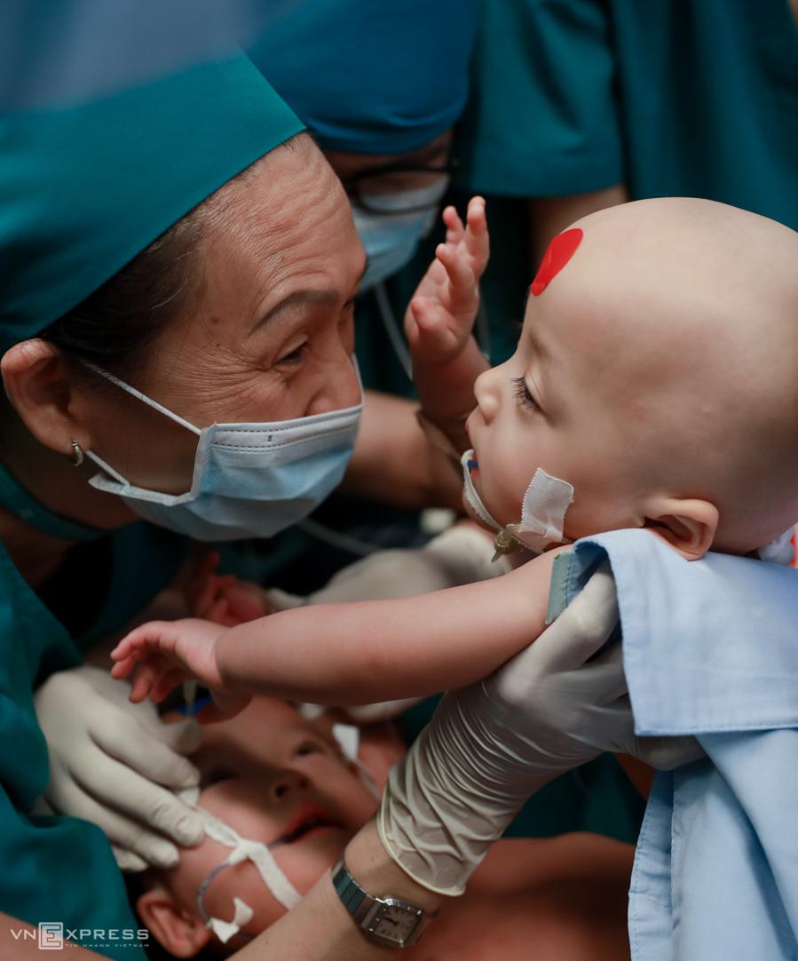 Hai bé Trúc Nhi - Diệu Nhi cũng dính nhau phần bụng chậu, giống anh em Việt - Đức, trước khi được mổ tách sáng 15/7. Ảnh: Hữu Khoa.