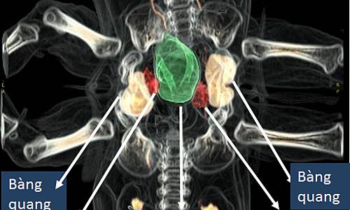 Một trong các hình ảnh mà bác sĩ Khánh dựng trước ca phẫu thuật.