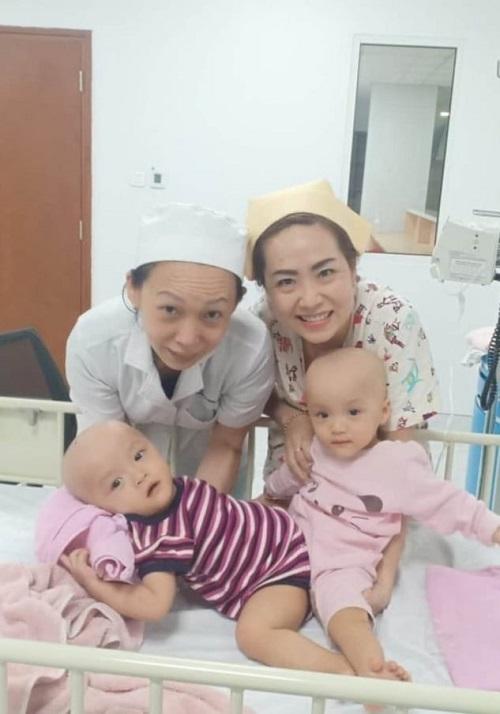 Các điều dưỡng chơi đùa với chị em song sinh trước giờ phẫu thuật. Ảnh Bệnh viện cung cấp