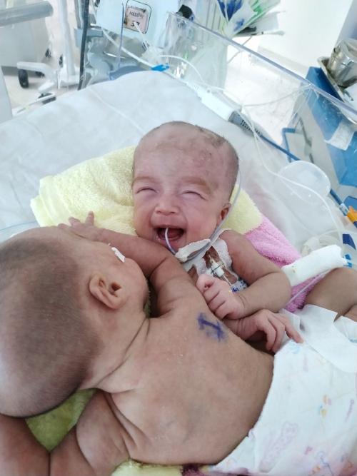 Nụ cười như hoa của hai bé khi được cai thở máy, rời vòng tay các mẹ điều dưỡng sang tay mẹ ruột. Ảnh Bệnh viện cung cấp