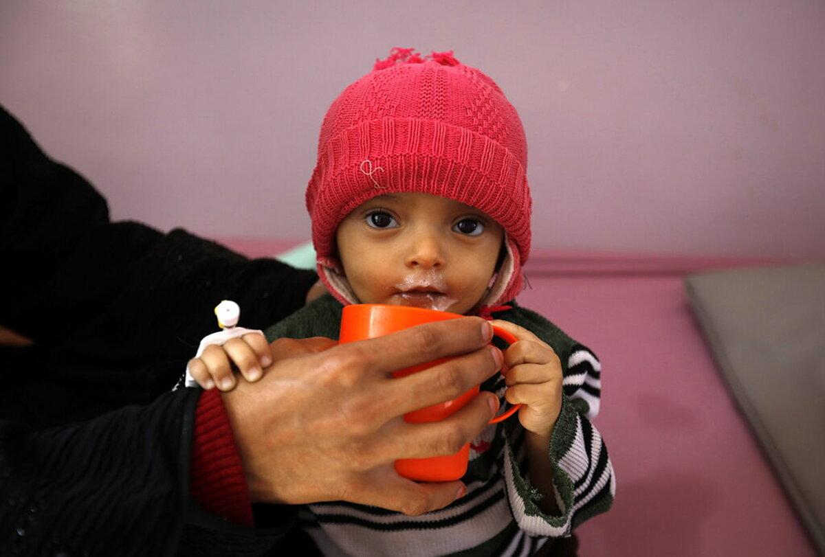 Một trẻ mắc bệnh suy dinh dưỡng, điều trị tại Bệnh viện Sanaa, Yemen, tháng 1.2020. Ảnh: Shutterstock
