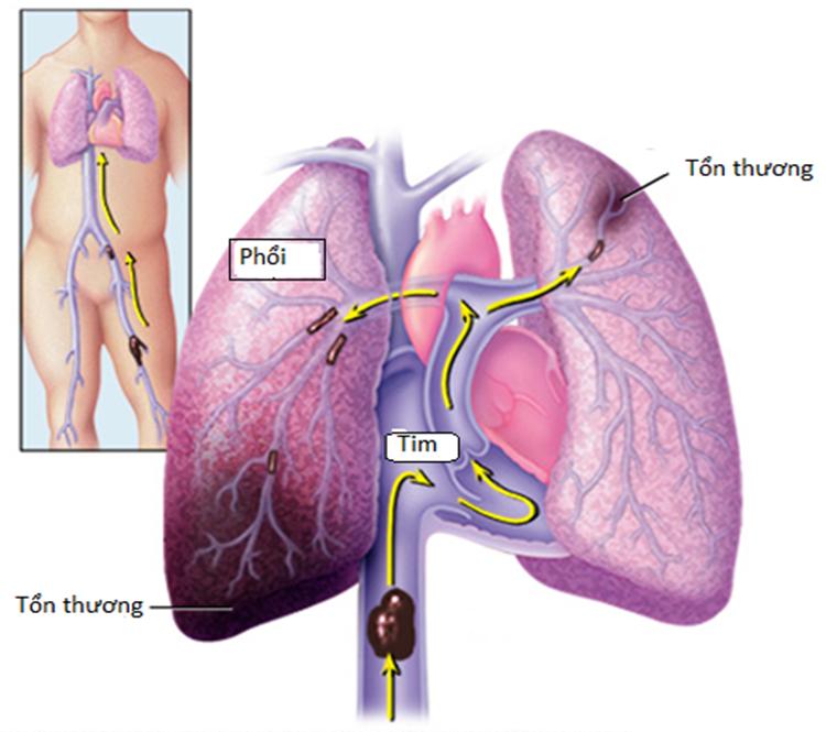 Diễn biến tắc động mạch phổi. Ảnh: Mayo Clinic.